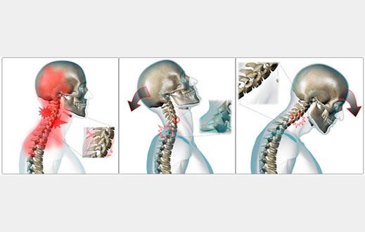 Informes biomecánicos ante una colisión por alcance con esguince cervical o whiplash